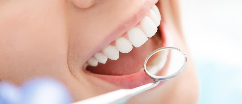 Unser Wissen für Ihre Zähne - Professionelle Zahnreinigung