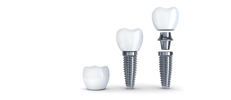 Unser Wissen für Ihre Zähne - Zahnimplantate